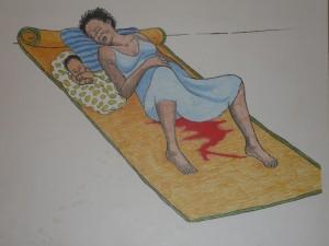 דימום מסוכן לאחר לידה